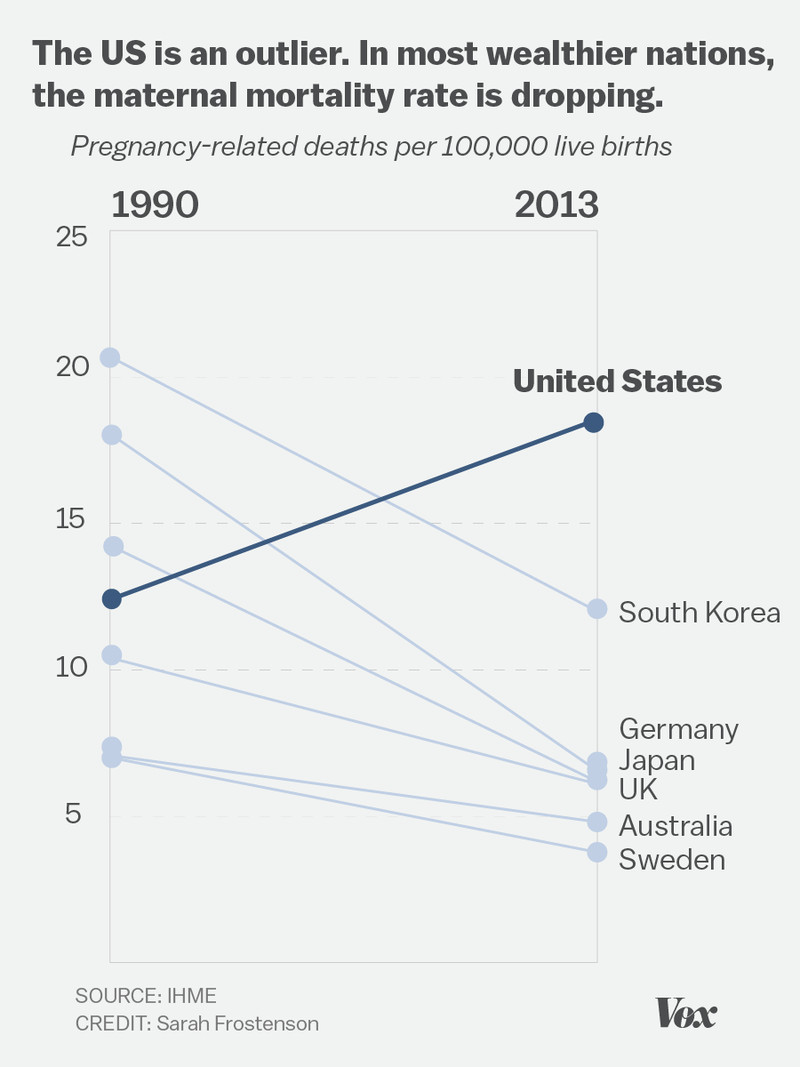 Maternal mortality is increasing in the US, unlike most other wealthy nations